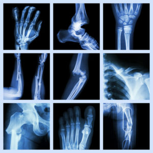 Staten Island Scaffold Injury Lawyer